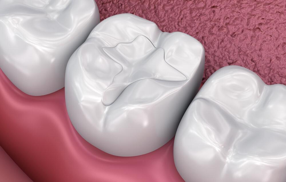 dental graphic of dental filling