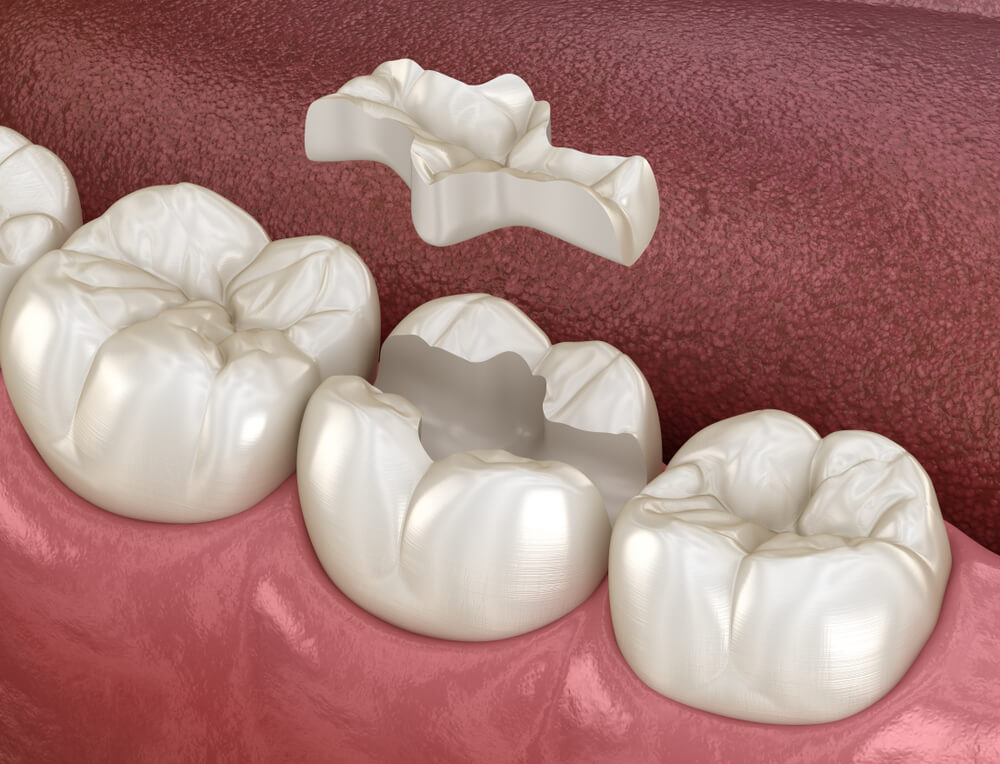 dental graphic of inlay being inserted