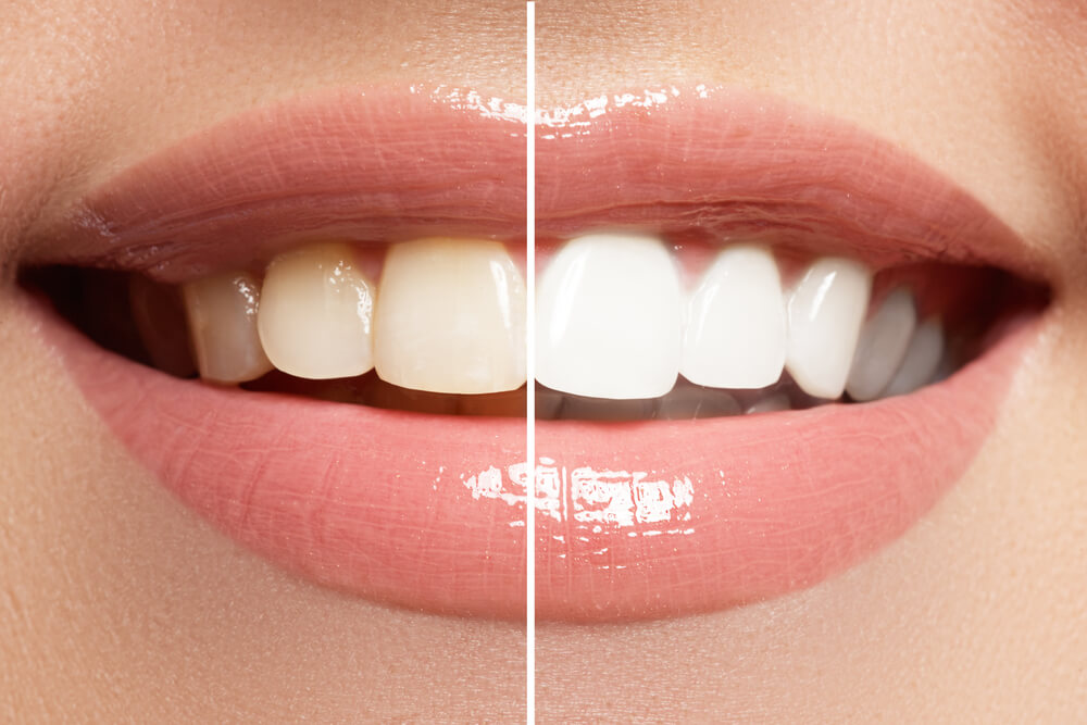 before and after result after whitening