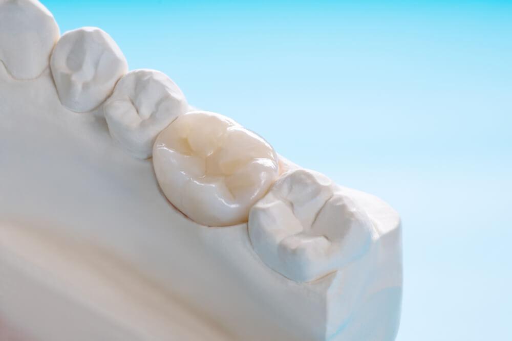 Prosthodontic of crown
