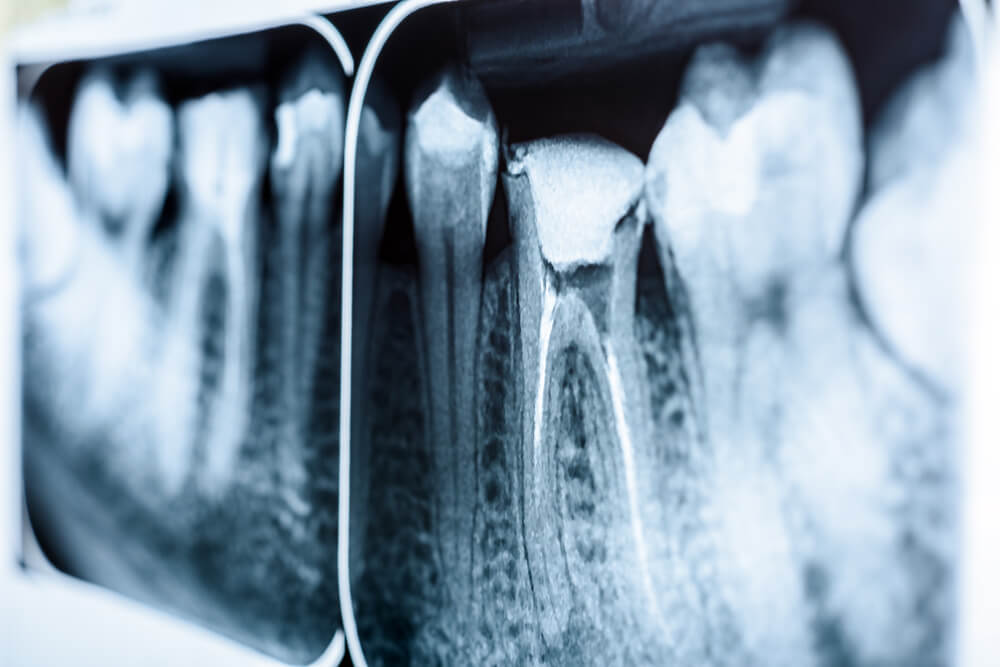 dental x-ray of a root canal issue