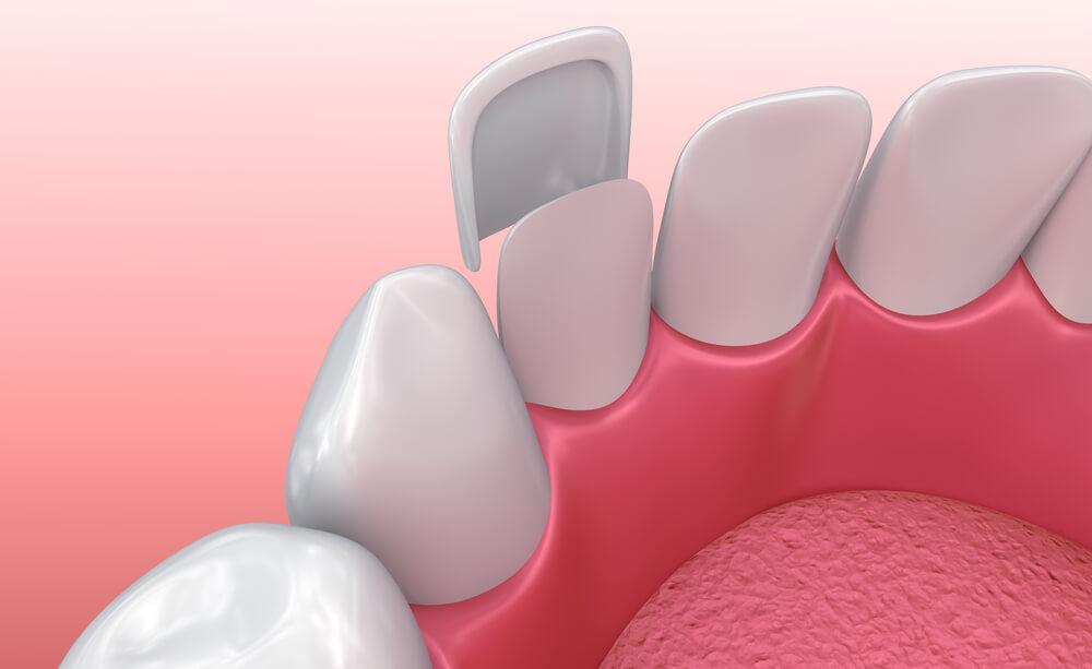 dental graphic of veneer being inserted